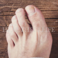 All About Gout: Symptoms and Treatment Options